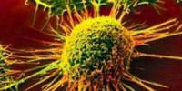 物理工具有助于追踪癌细胞的多样性