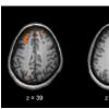 参与精神分裂症的专家们争相寻求新的治疗方法