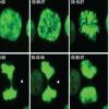 癌症中的多余染色体可能是好是坏