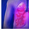 体重增加与成年期肺功能下降有关