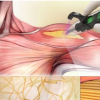 开发用于治疗肌肉骨骼损伤的手持式3D打印机