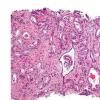 研究人员宣布开发针对前列腺癌的准确无创尿检的进展