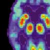 研究人员发现可能增加对阿尔茨海默氏症蛋白敏感性的基因变异