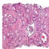 结合活检方法的测试可改善前列腺癌的诊断