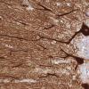 研究人员发布了所有人类大脑蛋白质的数字地图集