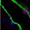 小鼠研究表明免疫细胞在心脏中起着令人惊讶的作用