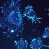 AI揭示了种族群体之间癌症组织外观的差异
