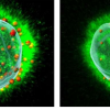 科学家发现一种可能导致新的免疫疗法头颈癌的机制