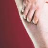 糖尿病相关的下肢并发症增加