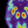 通过鼻子给予普通的肌肉松弛剂显示出治疗神经退行性疾病的潜力