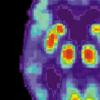 阿尔茨海默氏症和不寻常的分子伴侣