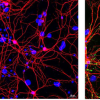 自然杀手细胞可能阻止帕金森病的发展