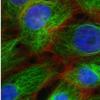 个性化的血液活检可能提供癌症复发的信号