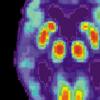对大脑结构的新研究突显出与阿尔茨海默氏症和自闭症有关的细胞