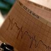 经皮冠状动脉介入治疗后双重疗法可降低房颤出血风险