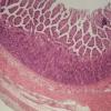 使用芯片上的器官对复杂疾病进行建模