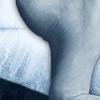 激光加局部抗真菌药对灰指甲有效