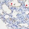 研究发现细菌蛋白片段杀死肺纤维化中的肺细胞