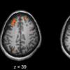 研究确定认知智力如何成为全脑现象