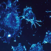 研究人员发现特定组蛋白脱乙酰基酶在非小细胞肺癌中的新作用
