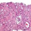 免疫疗法对转移性前列腺癌有效具有特定的免疫激活标记