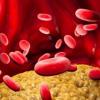 地中海饮食最适合降低LDL胆固醇