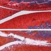两种实验药物的强效组合可抵消大鼠的骨关节炎
