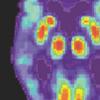 阿尔茨海默氏症的筛查数据将高淀粉样蛋白水平与早期疾病联系起来
