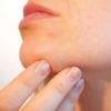 益生菌可能有助于治疗痤疮