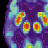 研究人员确定MBI与阿尔茨海默氏病之间的相关性