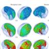 在计算机仿真影响研究中发现令人震惊的虐待性头部创伤