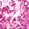研究人员揭示了炎症性肠病背后的重要遗传机制