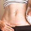 剖宫产的女性更容易患肥胖症和糖尿病