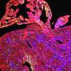 通过癌症基因上调可能治愈心脏病
