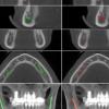 人工智能使牙医的工作更加轻松 新模型有助于对下颌管进行定位