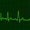 研究人员发现英格兰的感染性心内膜炎增加了86%