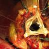 经导管或外科主动脉瓣置换的五年结果