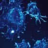 研究发现 免疫系统改变发生于多发性骨髓瘤的早期发展