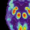 计算技术探索大脑中淀粉样蛋白聚集的阴暗面
