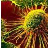 创新的方法为治疗尿路上皮癌提供了选择
