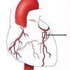 晚期肾脏疾病患者的冠状动脉疾病治疗