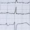 一种用于心脏诊断的新工具