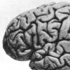 肢体不属于自己的感觉与大脑结构和连接不足有关