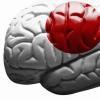 研究发现儿童脑肿瘤的潜在新治疗靶点