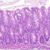 发现基因组的暗物质区域如何影响炎症性疾病
