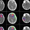 人工智能成功用于识别不同类型的脑损伤