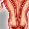 晚期卵巢肿瘤患者行淋巴结清扫术的随机试验