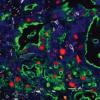 为什么胰腺导管腺癌如此致命