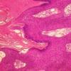 骨髓增生性肿瘤的分类和个性化预后