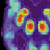 旨在识别阿尔茨海默氏病病原体的抗体